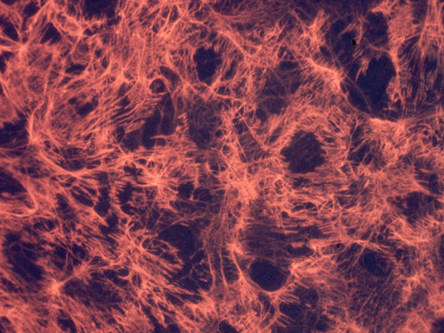 Fibronectin matrix on cultured cells. Photo credit: Richard Hynes